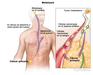 Created for the National Cancer Institute, http://www.cancer.gov